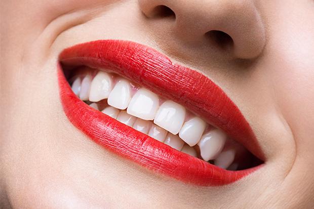 dientes sanos y limpios